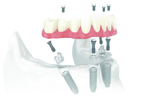 Diagram of All-on-4 treatment showing placement of 4 dental implants
