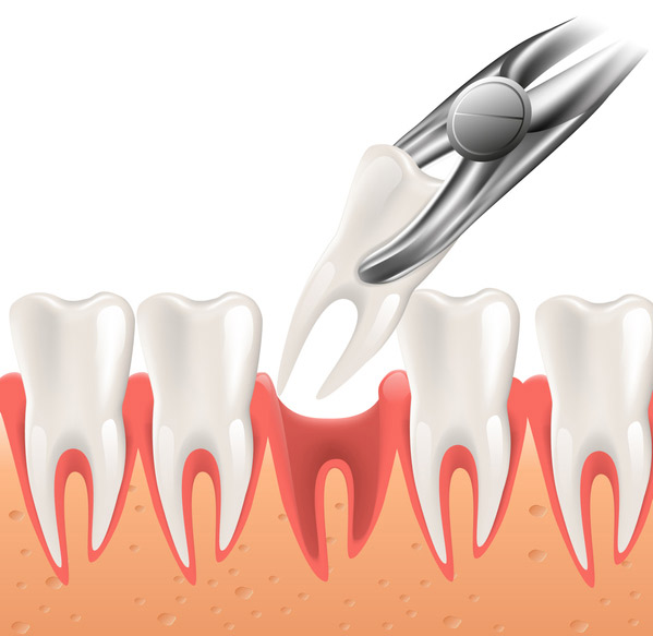 Illustration of a tooth being extracted